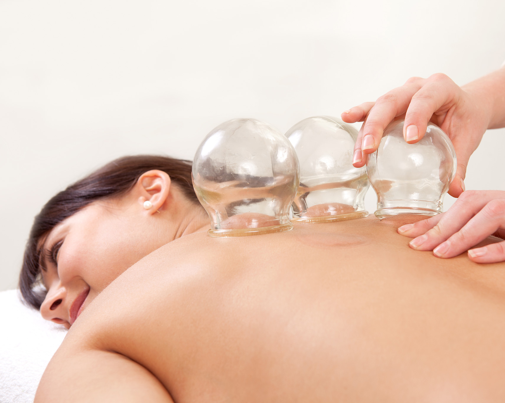 cupping at Calgary Healing Acupuncture clinic